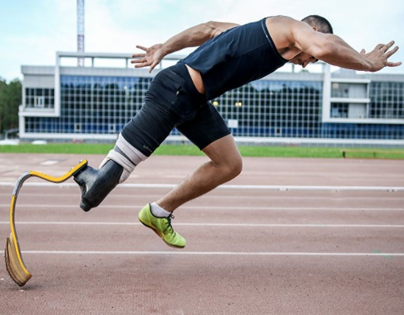 Athlete using a prosthetic leg